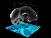 Un atlas del cerebro